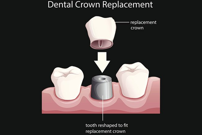 Dental Crown Replacement