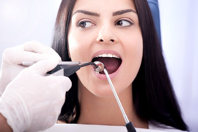 Extractions - Tooth Removal