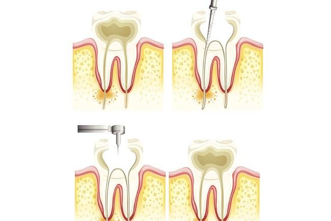Root Canals Procedure